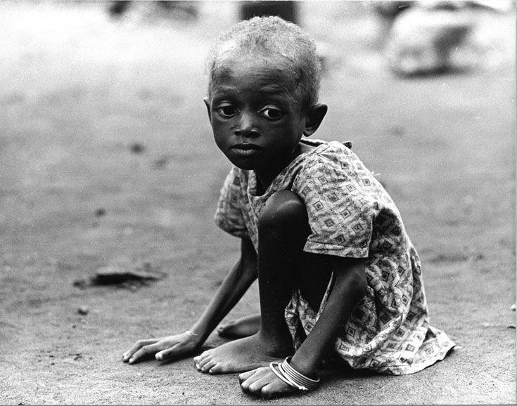 Udsultet barn under Biafra-krigen